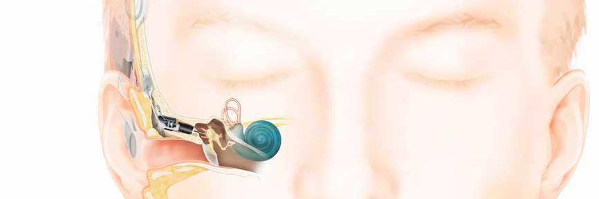 implante de oído medio Carina